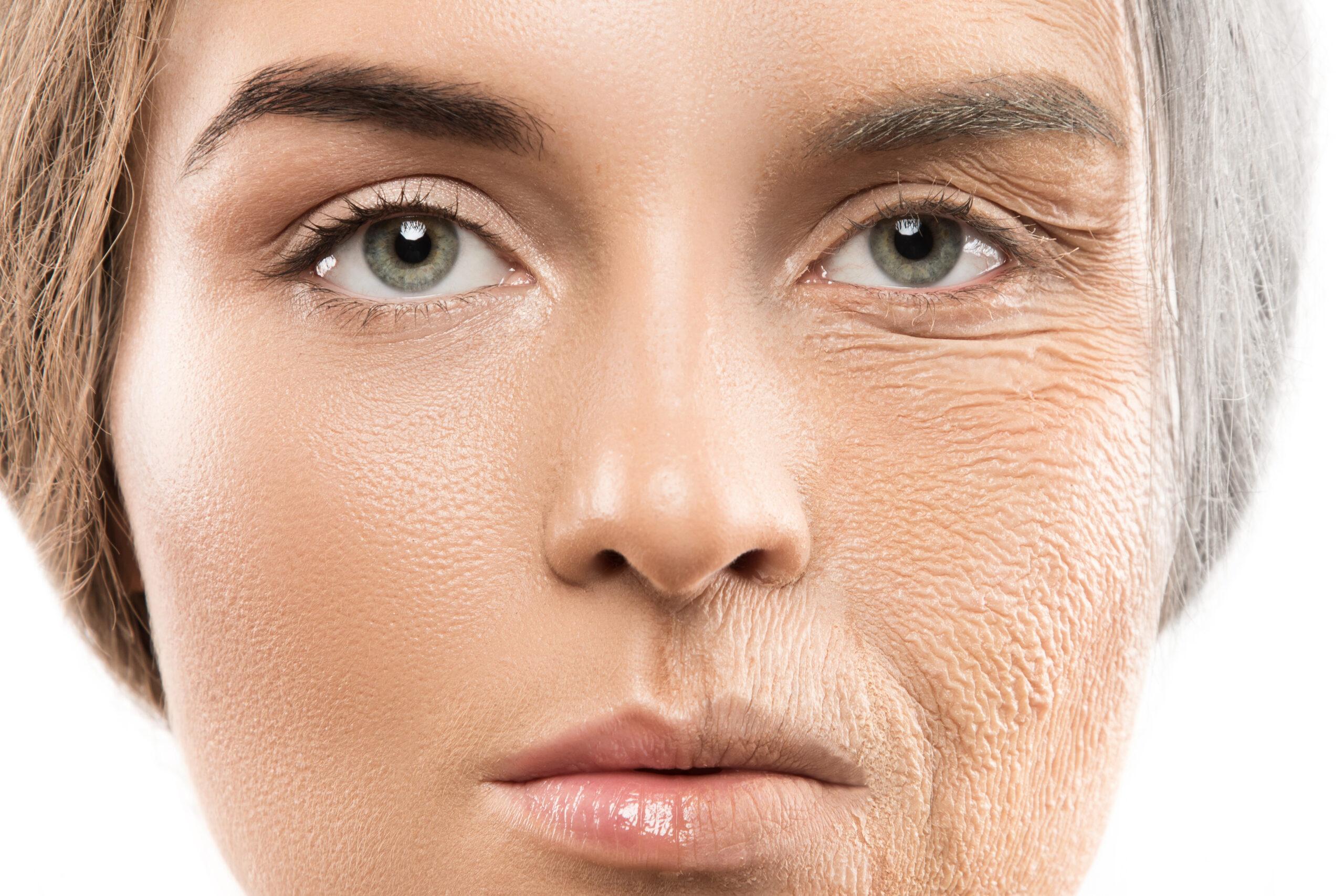 Los antioxidantes y el colágeno demuestran la evolución de la piel.
